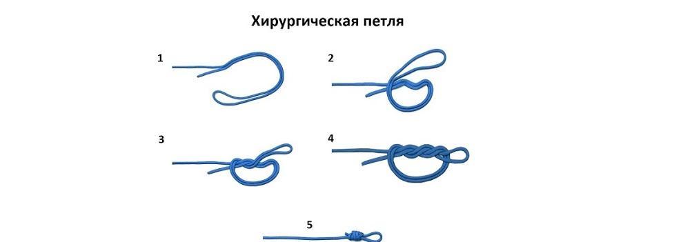 Рыбацкий узел «Хирургический узел»